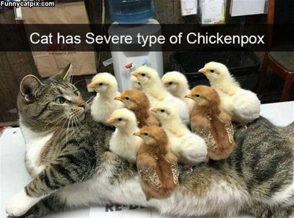 Some Chickenpox